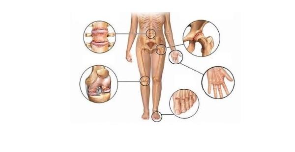 Czym jest reumatyzm tkanek miękkich?