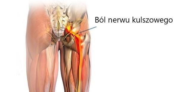 rwa kulszowa - objawy przyczyny i leczenie bólów korzonków i nerwu kulszowego