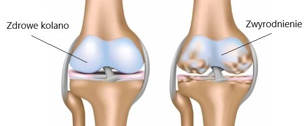 zwyrodnienie kolan